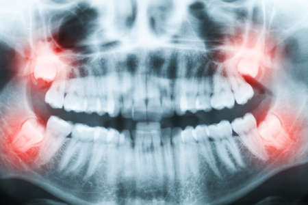 Closeup of x-ray image of teeth and mouth with all four molars vertically impacted and still not grown and visible in the jaw bone. Filled cavities visible. Impacted molars (wisdom teeth, teeth number 8) on the right side of the face (image left) shown re