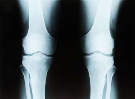 X-ray of a senior male right and left knee showing tibia and fibula bones of both legs