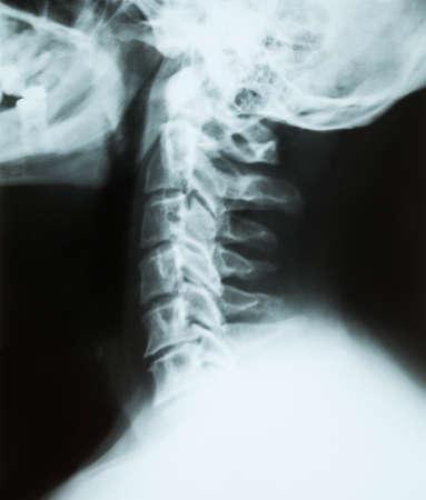 X-ray van een cervicale wervelkolom (nek) van een senior mannelijke patiënt, uitzicht vanaf de linkerkant patiënt