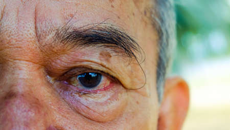 age, vision and old people concept, close to the face and eyes of an Asian old man Stock fotó