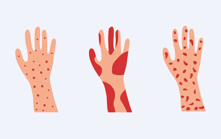 Skin allergy set. Hands covered red rash and scaling serious problems with psoriasis and eczema destruction of epidermis severe allergic dermatitis with rash vector urticaria.
