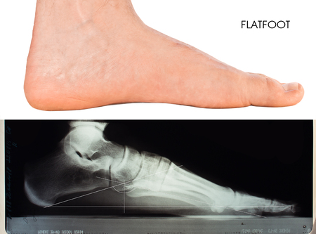 Mens foot. Flatfoot second degree. X-ray of foot
