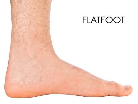 Mens foot. Flatfoot second degree. Isolated on white background Standard-Bild