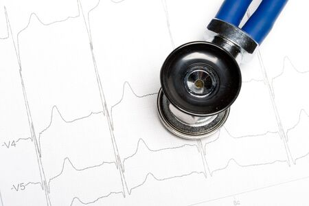 cardioid: Estetoscopio electrocardiograma en el gr�fico. M�dico concepto de cardiolog�a.  Foto de archivo