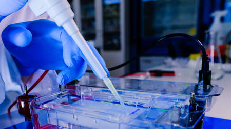 Protein separation on gels in a Electrophoresis chambers. Concept of science, laboratory and study of diseases.