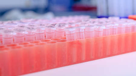 Laboratory rack with plastic tubes for DNA study. DNA gel-loading. Concept of science, laboratory and study of diseases.