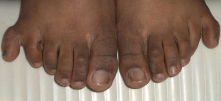 6 12: Six fingers in both feet isolated Stock Photo