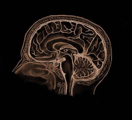 Brain Reklamní fotografie
