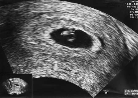 ultrasonic: Ultrasonic image of an embryo at age 6 weeks and 4 days