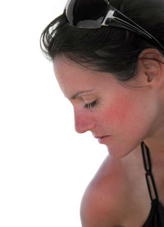 Sunburn: closeup profile portrait of young woman with sunburn