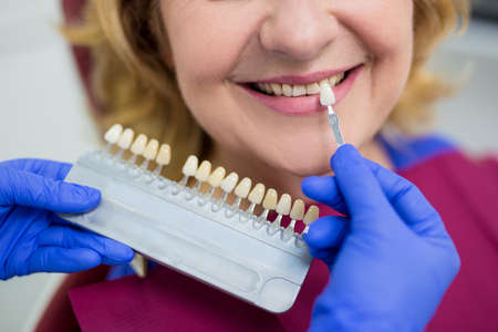 close up of dentist checking the level of teeth whitening the patient's teeth