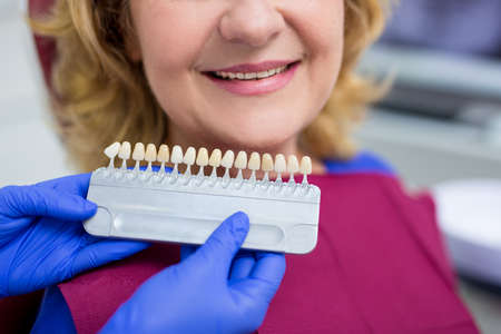 dentist checking the level of teeth whitening for mature woman patient Фото со стока