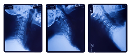 fractured: X-ray images of the neck spine