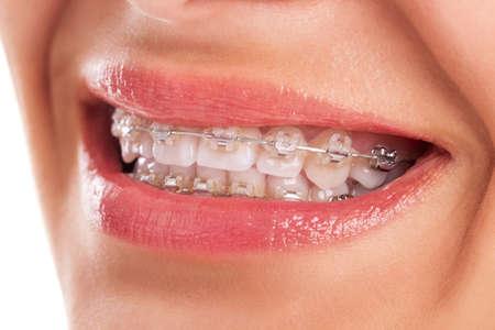 ortodoncia: Dientes perfectos con los apoyos aislados Foto de archivo