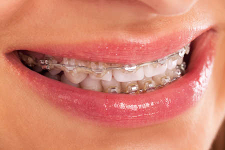 Detail of young womans smile showing white teeth with braces isolated Imagens
