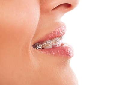 ortodoncia: Dientes, enjuagarse la boca con los apoyos aislados