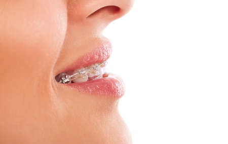 braces: Mouth care teeth with braces isolated