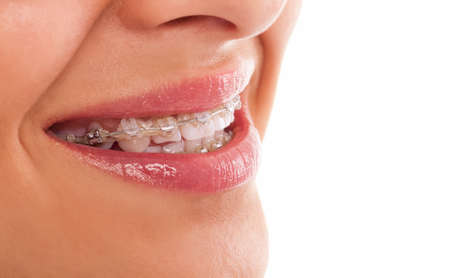 filling equipment: teeth with braces close up isolated