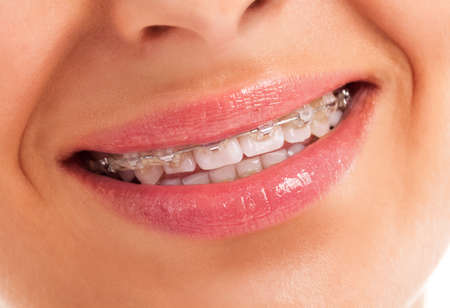 Details of teeth with braces isolated