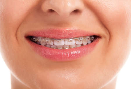 ortodoncia: mujer sonriente que muestra los dientes blancos con tirantes Foto de archivo