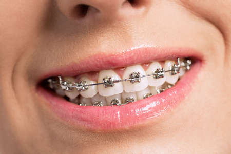 Happy success smile with perfect teeth and braces Foto de archivo