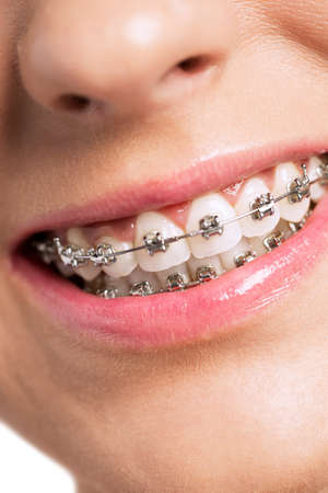 Happy healty woman with braces