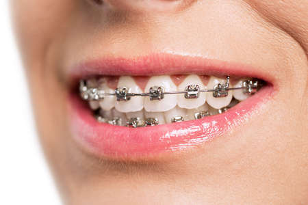 Teeth with braces isolated on white Banque d'images