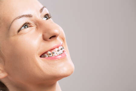 ortodoncia: chica con tirantes en los dientes Foto de archivo