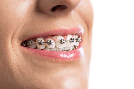 perfect teeth: Close up of braces girls perfect teeth Stock Photo