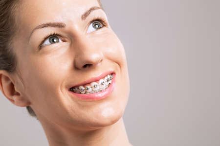 Bretelles dents sourire Femme sur fond gris
