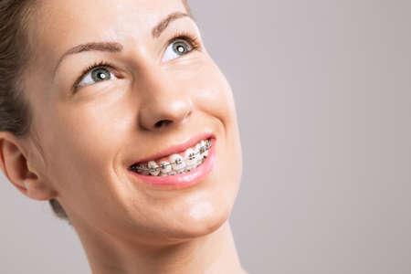 orthodontics: Los apoyos de los dientes de la sonrisa femenina sobre fondo gris Foto de archivo