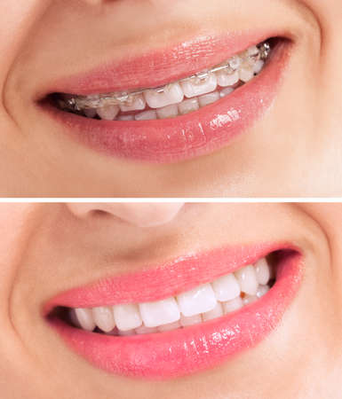 dientes sucios: Dientes perfectos antes y después de los apoyos se cierran para arriba Foto de archivo
