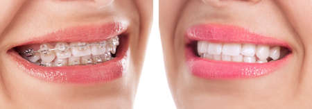 Before and after braces treatment close up Stock Photo