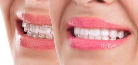 Hermosos dientes después del tratamiento llaves se cierran para arriba Foto de archivo