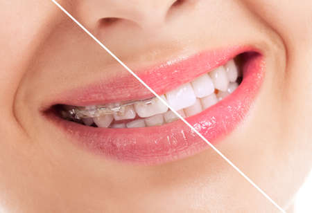 yellow teeth: Beautiful heathy smile before and after braces close up