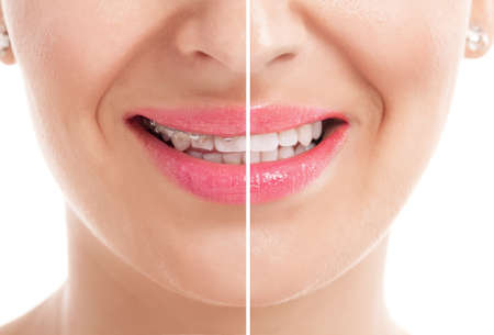 Teeth with braces before and after