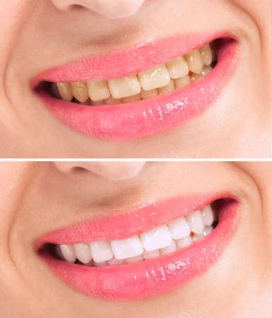 dientes sucios: Antes y después de blanquear los dientes de tratamiento de cerca