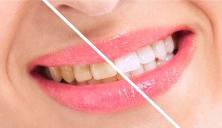 breaching: Breaching teatment, woman perfect whiten teeth close up