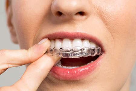 Sourire femme avec du silicone formateur close up