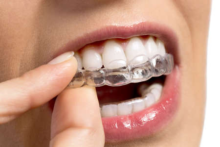 Wearing orthodontic silicone trainer close up