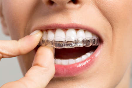 invisible: Holding Invisible braces close up Stock Photo
