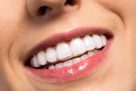 orthodontics: ni�a sonriente usando llaves invisibles dientes se cierran para arriba Foto de archivo