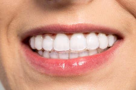 Mujer que desgasta el entrenador de ortodoncia de silicona de cerca