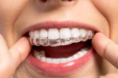 El uso de silicona entrenador de ortodoncia de cerca Foto de archivo
