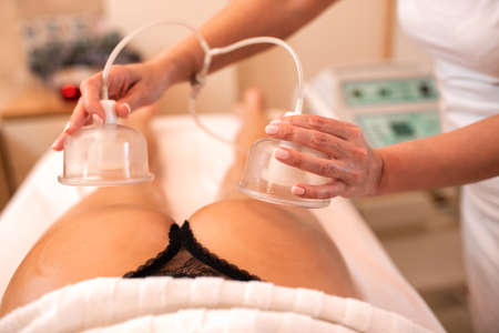 Masseuse holding anti-cellulite silicone suction cups over a sexy butt Imagens