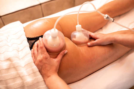Experienced masseuse working with anti-cellulite silicone suction cups, beauty treatment