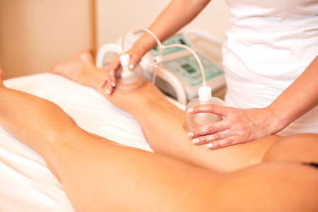 Masseuse applying vacuum cups for cellulite reduction, anti-cellulite concept