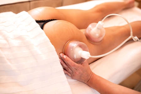 Masseuse using cellulite suction cups, concept of anti-cellulite