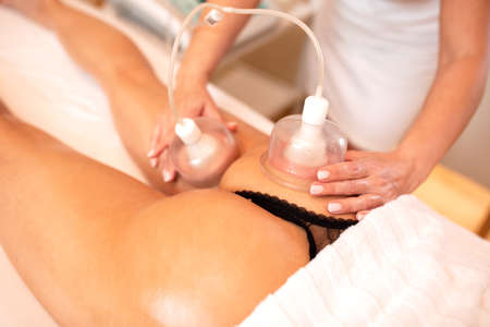 Masseuse applying cellulite cupping therapy, concept of cellulite reduction Imagens
