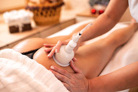 Cupping therapy for cellulite reduction, concept of healthy lifestyle